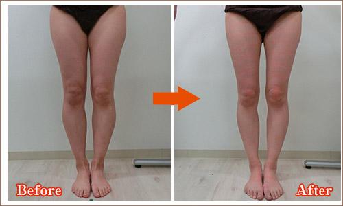 足痩せ効果2